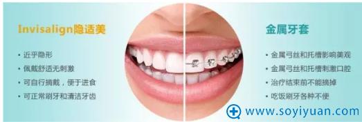 隐适美牙齿矫正与金属牙套的对比