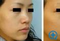 哪种玻尿酸适合隆鼻?玻尿酸隆鼻的价格是多少?