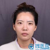 肋软骨隆鼻多少钱?上海华美李健做膨体加肋软骨隆鼻费用5万元
