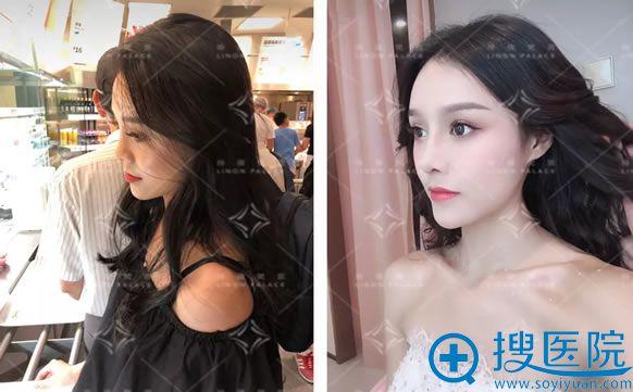 北京玲珑梵宫耿祎楠鼻综合案例