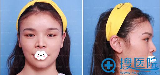 鼻综合眼综合术前照片