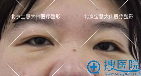 做双眼皮修复和开眼角手术前