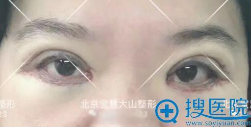 做完双眼皮修复和开眼角2天后
