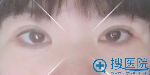 做完双眼皮开眼角和去眼袋15天效果