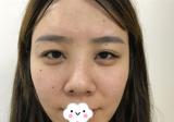 济南吉芙解学江给我做硅胶假体隆鼻 鼻头缩小后五官都变精致了