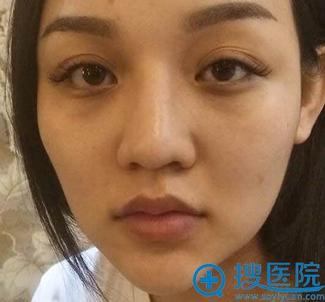 在北京玲珑梵宫做鼻修复手术前