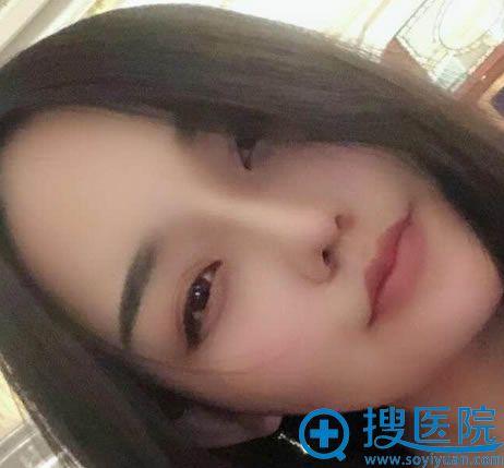 北京玲珑梵宫王光辉鼻修复案例30天效果