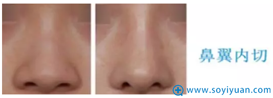 鼻翼缩小之鼻翼内切手术案例对比图