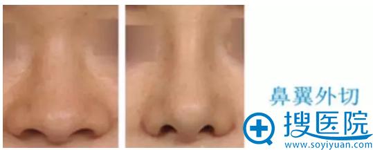 鼻翼缩小之鼻翼外切手术案例对比图