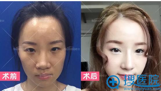 上海喜美王会勇做的鼻中隔鼻综合+鼻翼缩小真人案例