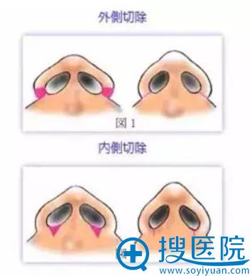 鼻翼缩小手术内切和外切手术示意图