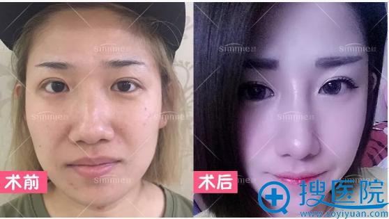上海喜美曲妙轩做的喜美鼻中隔鼻综合+鼻翼缩小真人案例