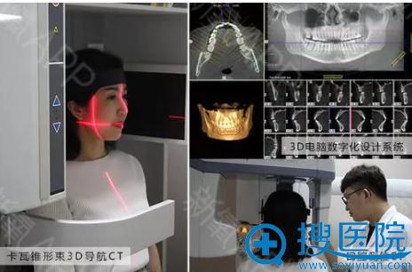 牙齿矫正术前拍CT、面诊