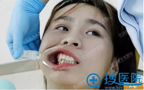 在杭州华山连天美做牙齿矫正前