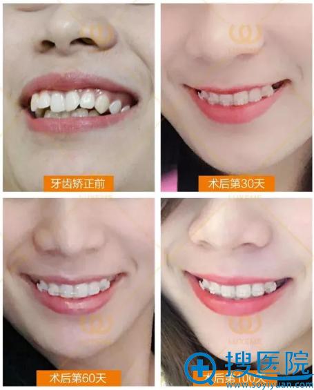 杭州华山连天美牙齿矫正案例恢复过程图