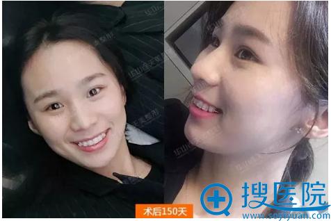 在杭州华山连天美做完牙齿矫正的效果图
