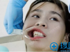 分享我找杭州华山连天美王婵做牙齿矫正的亲身经历和收费价格表
