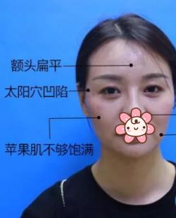 看面部凹陷的她在深圳美加美做自体脂肪面部填充变成元气美少女