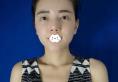 赵峰给我做隆鼻术后1年又到重庆爱思特让他做了假体隆胸整形