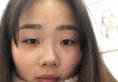 南昌割双眼皮多少钱?我找南昌韩美陈丹丹做双眼皮花了9800元