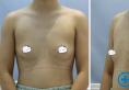 在宁波薇琳做了假体隆胸 曾举院长建议我使用了曼托假体