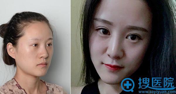北京艺美王东自体脂肪填充案例