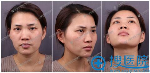 在上海华美做双眼皮修复和隆鼻手术前