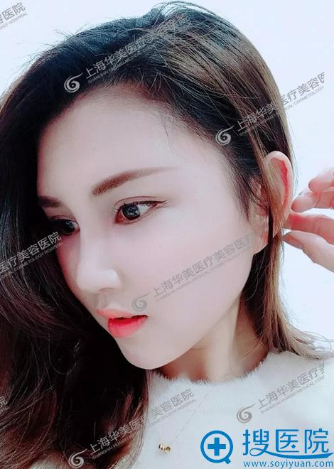 上海华美杨亚益双眼皮修复术后两个月