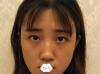 我花2W多在重庆爱思特做面部不对称畸形矫正改下颌角真实故事