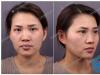 用我的亲身经历告诉你上海华美杨亚益做双眼皮修复怎么样