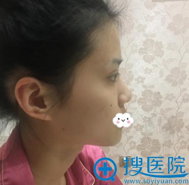 我与闺蜜到无锡米兰整形医院王忠志处做鼻综合隆鼻和双眼皮1周