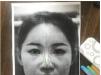 在廊坊凯润婷找赵凯做完双眼皮隆鼻后拿到一份2018年整形价格表
