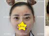 脸上如何祛痘?南京施尔美微针美塑祛痘详细过程及效果公开