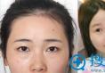 硅胶和膨体隆鼻哪个效果好?常德曹家整形王琳鼻综合案例见证