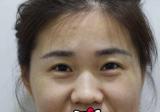 沈阳美联致美工作的朋友推荐我找管连斌做双眼皮隆鼻 效果不错