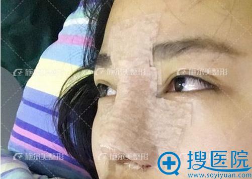 李彤彤鼻综合术后一天