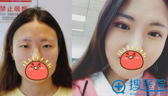 北京华真堂吴宇宏双眼皮案例