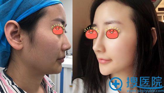 吴宇宏院长做鼻综合隆鼻真人案例效果