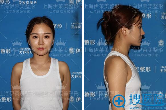 在上海伊莱美做隆胸手术前