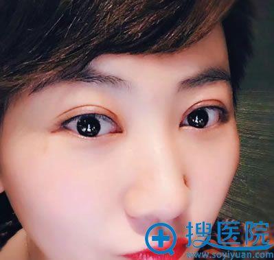 北京联合丽格刑新双眼皮修复案例