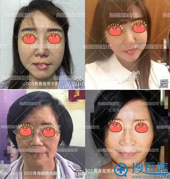 北京南加杨博博士DGS青春复原术真人案例