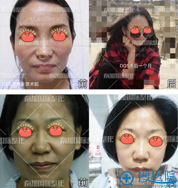 北京南加杨博自体脂肪填充真人案例
