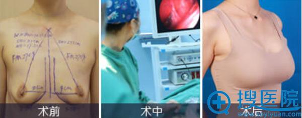 深圳美莱假体丰胸术前术后对比