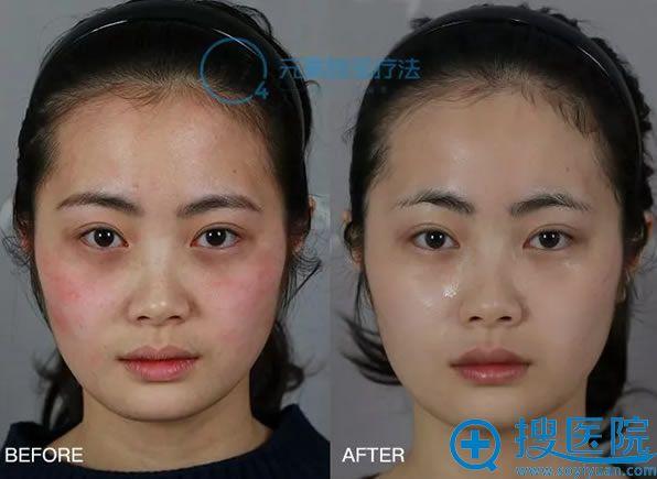 福州名韩敏感肌修复案例