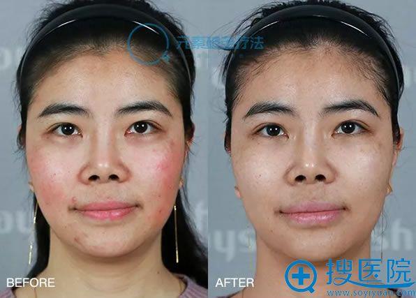 福州名韩O4元素破茧疗法修复斑痘案例