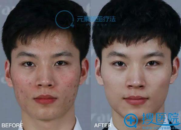 O4元素破茧疗法修复毛孔粗大案例效果