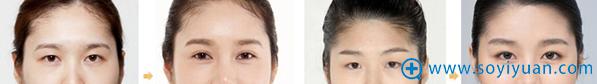 连云港大明整形美容医院双眼皮案例展示