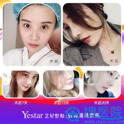 上海yestar彭才学做的鼻综合隆鼻案例