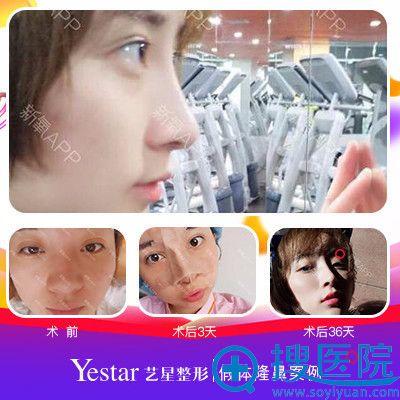 上海yestar彭才学做鼻子案例图