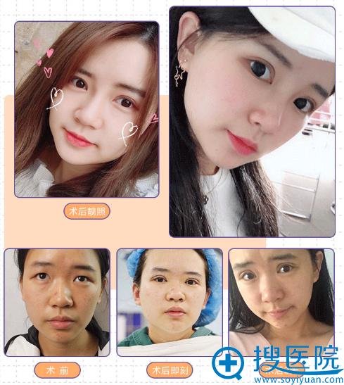 上海yestar彭才学做的双眼皮案例